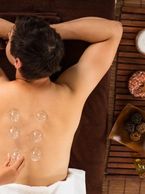 High Angle View Of A Relaxed Young Man Receiving Cupping Treatment On Back